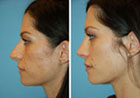virtual rhinoplasty
